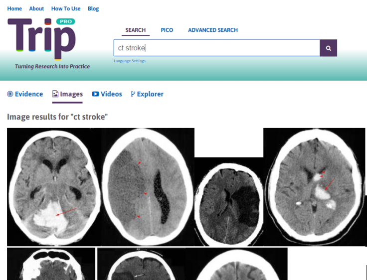 CT stroke